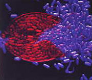 Microscopic photograph of burst SCN cyst. Figure 4